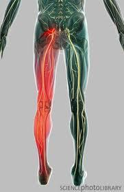 sintomi ernia lombare